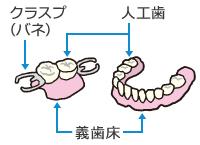 入れ歯の種類 | はじめよう!やってみよう! 口腔ケア