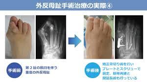 足の外科診療 « 倉敷成人病センター ひとりひとりにやさしく 最良の医療を
