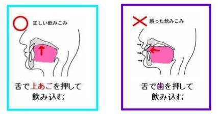 歯並びが悪くなる原因を治しませんか?