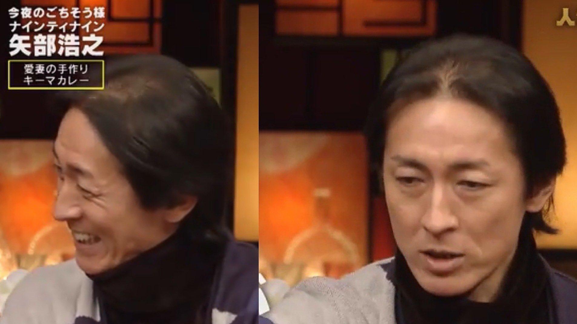 矢部浩之が髪の毛がハゲてきた!画像でハゲの原因を調査してみた!