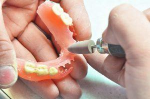 入れ歯の調整をするのにどれくらい費用がかかりますか?   ブログ ...
