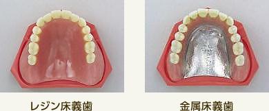 入れ歯(義歯)とは?|大阪入れ歯・義歯センター