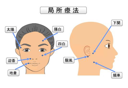 顔面神経麻痺通信10 顔面の経穴(ツボ)について|顔面神経麻痺通信